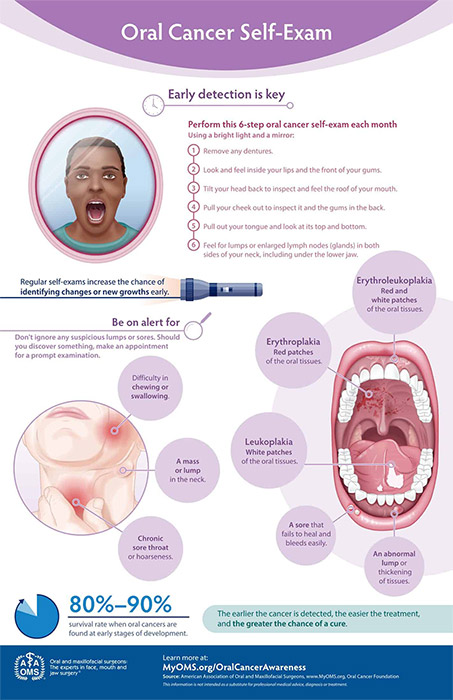 oral cancer self exam grahpic